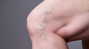 leg with phlebitis